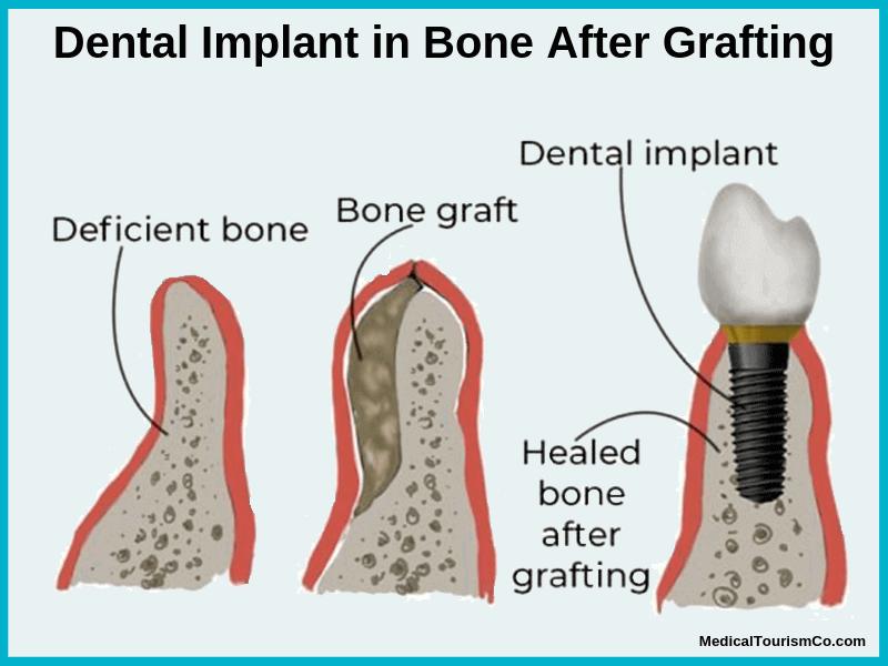 Bone grafting before Dental Implant