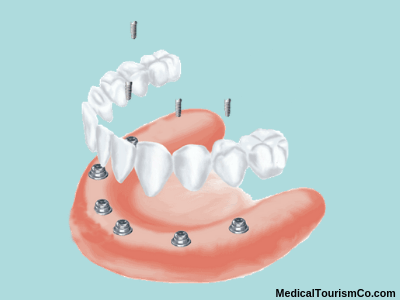 All-on-6 dental implants