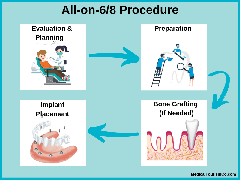 All-on-6 and 8 Procedure in Cambodia