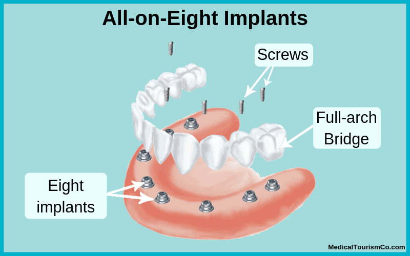 All-on-8 dental implants illustration