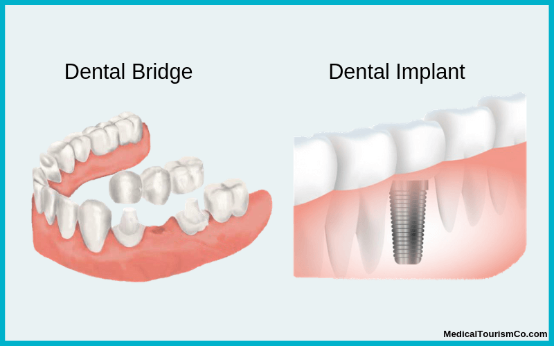 Dental Implants in Mexico | Low Cost Full Mouth Implants