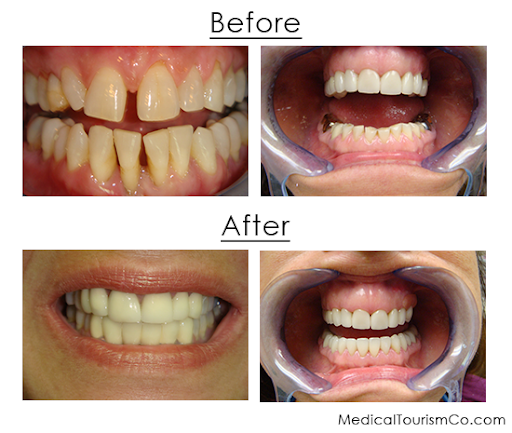 Full mouth reconstruction, full mouth reconstruction before after