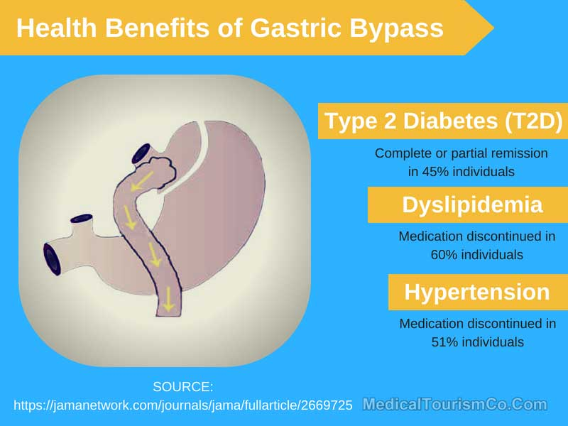 Health Benefits with Gastric Bypass