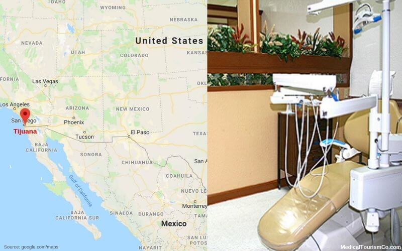 Tijuana Dental Clinic