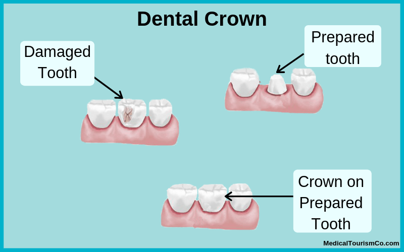 Dental Crowns in Los Algodones