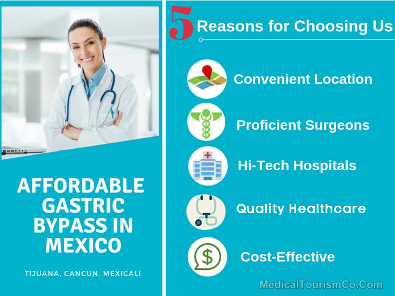Reasons to Choose MTC for gastric bypass