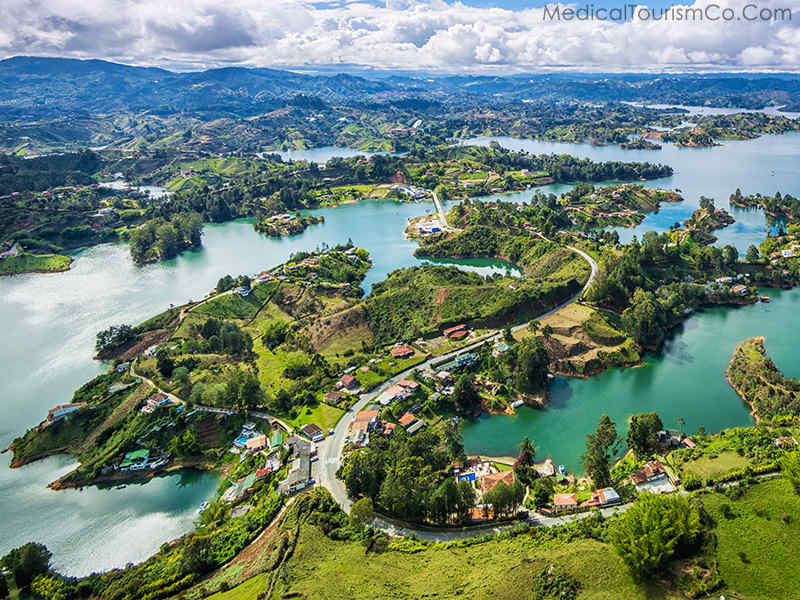 Dental tourism in Medellin- Guatape & El Peño