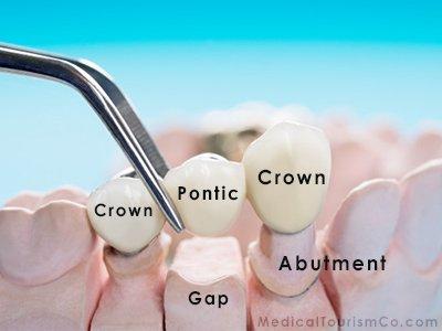 Dental Bridge Cost Abroad