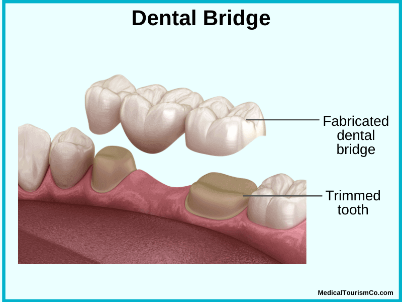 Dental Bridge in Cambodia