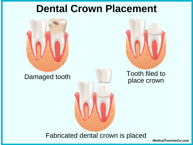 Dental Crown Placement Mexico