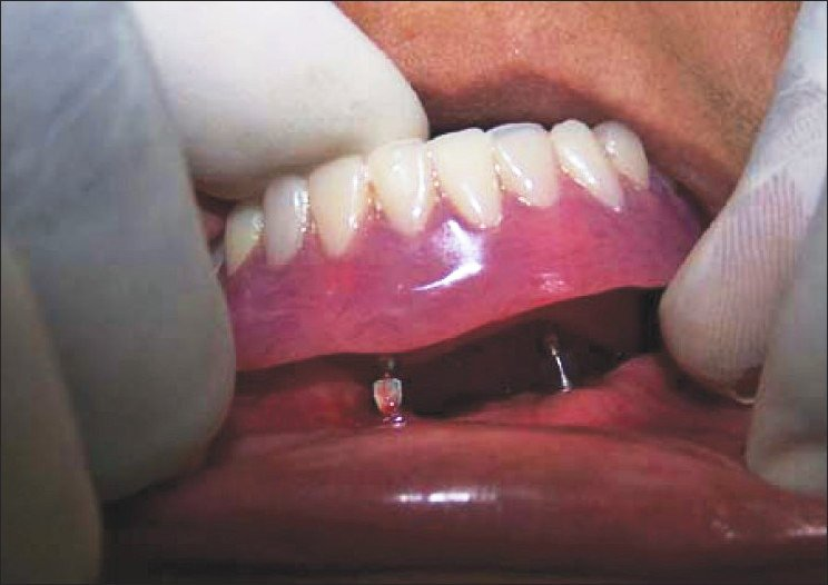 Mini Dental Implant & Denture