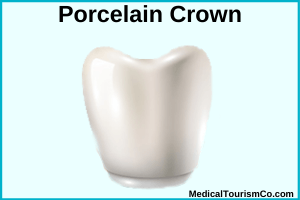 Porcelain crowns in Mexico