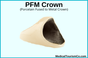 PFM Crown abroad