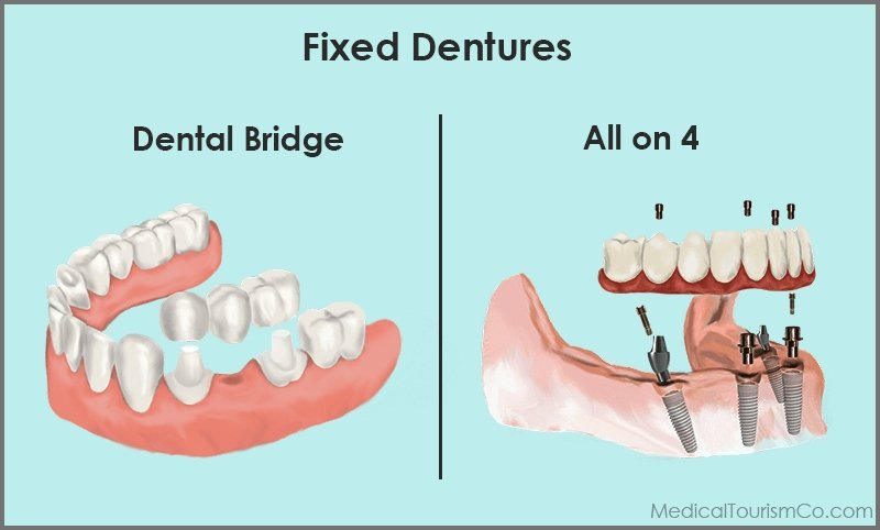 Bridge Vs Implant based fixed dentures abroad