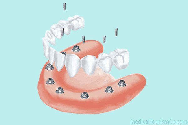 All-on-8 Implant based Dentures