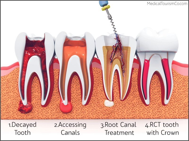 Root Canal Treatment Barranquilla