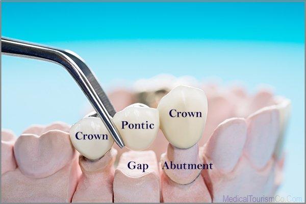 Dental Bridge Cost-Fixed Denture Abroad