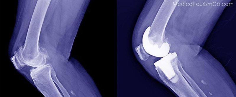 X-ray of knee: pre and post surgery