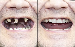Before & After Dental Implants