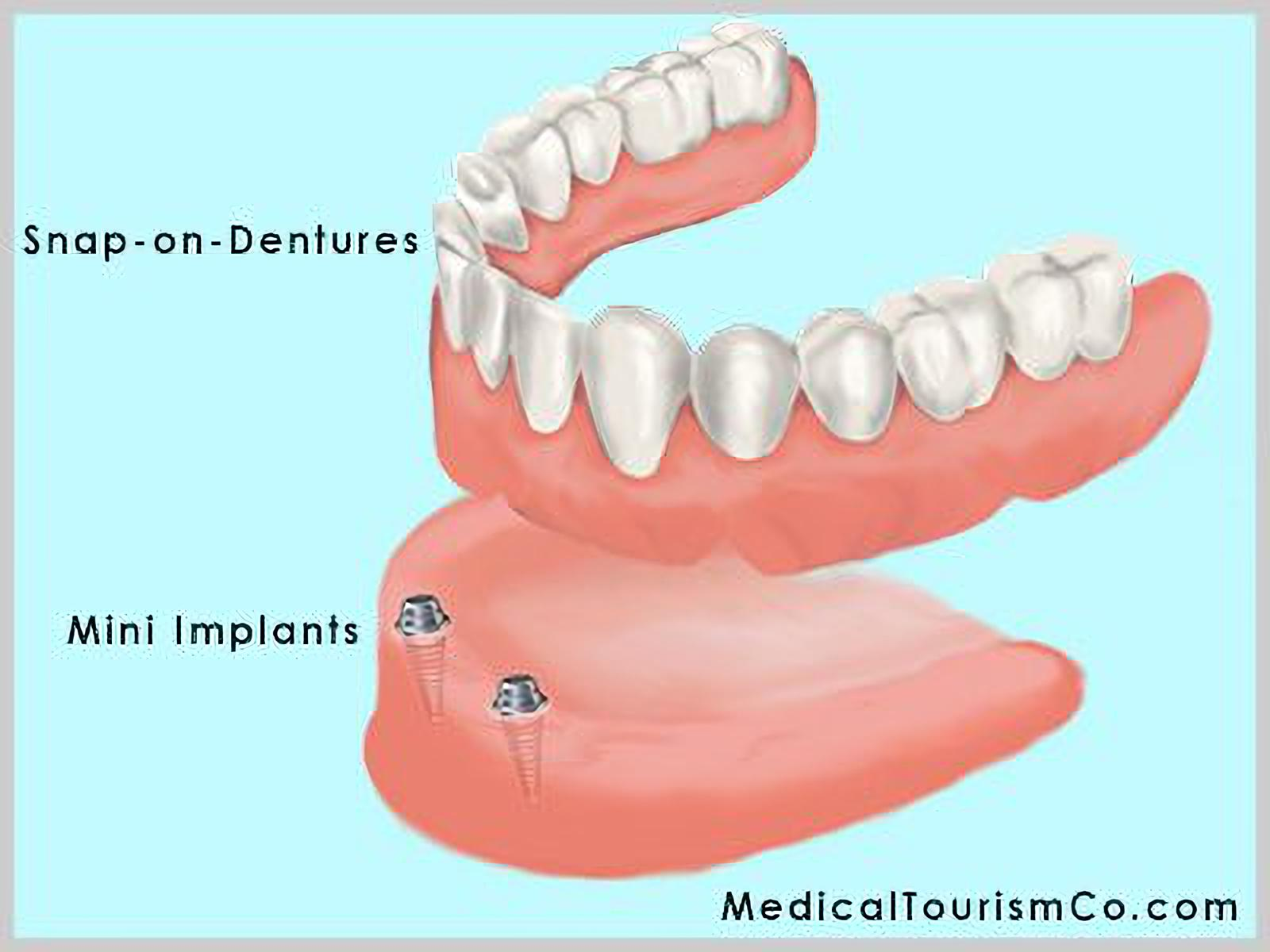 Snap-on Dentures in Colombia
