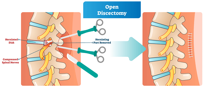 Discectomy - Spinal Surgery in India