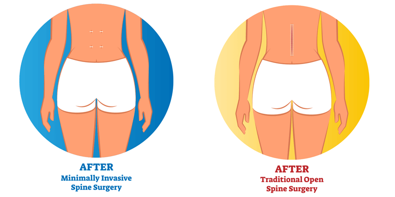 differnce between invasive and minimally inasive spine surgery