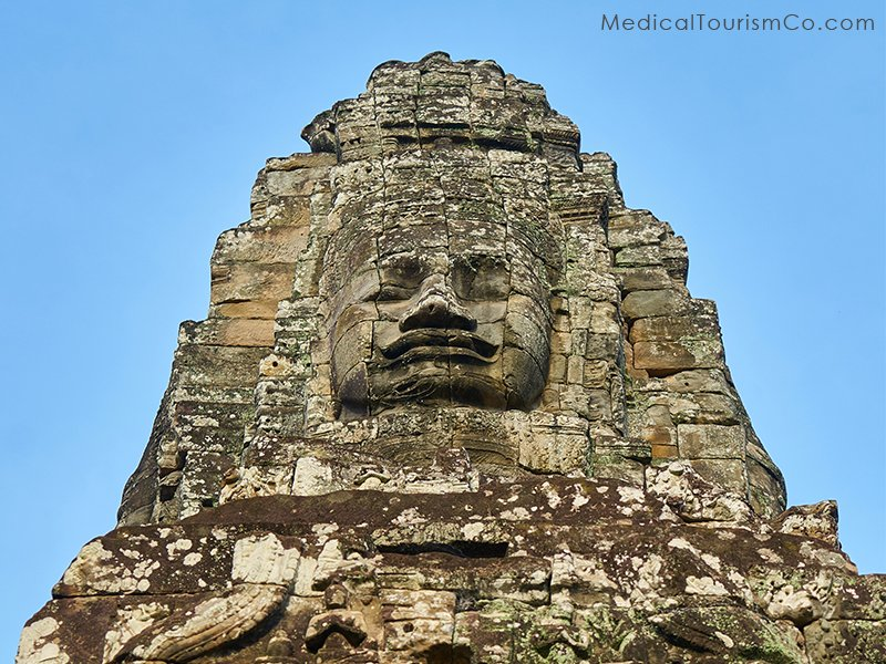 Angkor Wat temple- Dental Tourism in Cambodia