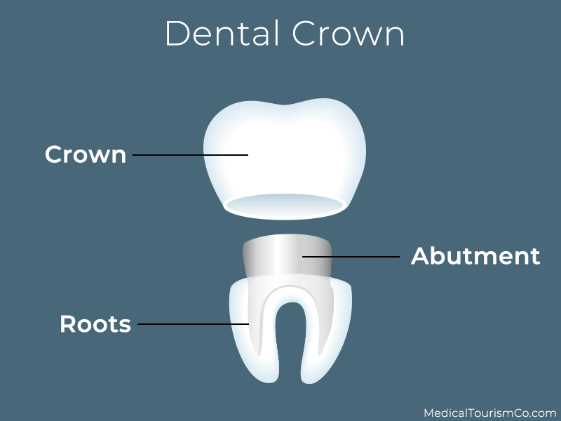 Dental Crown in Cambodia