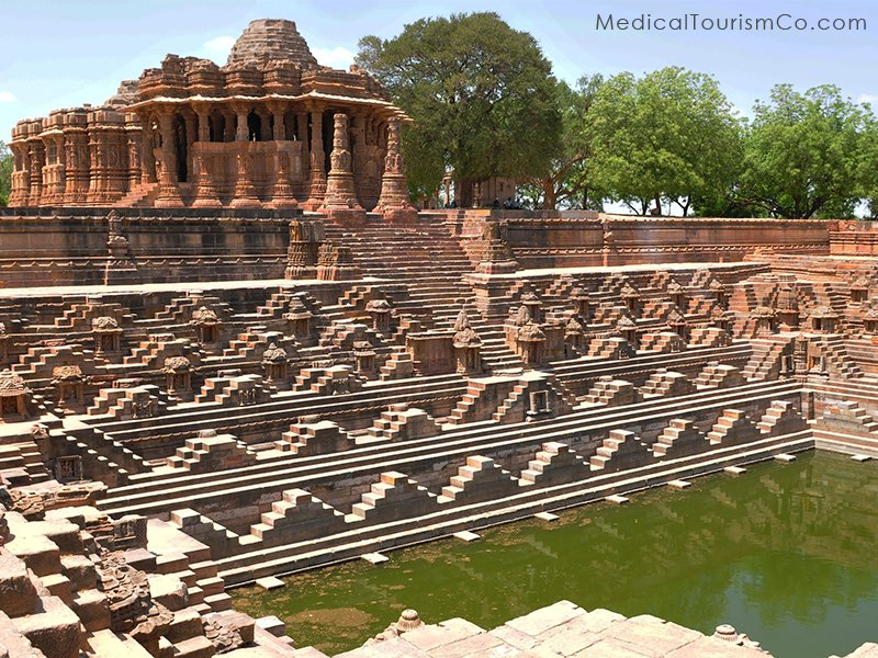 Modhera Step-Wells- Dental tourism in Ahmedabad