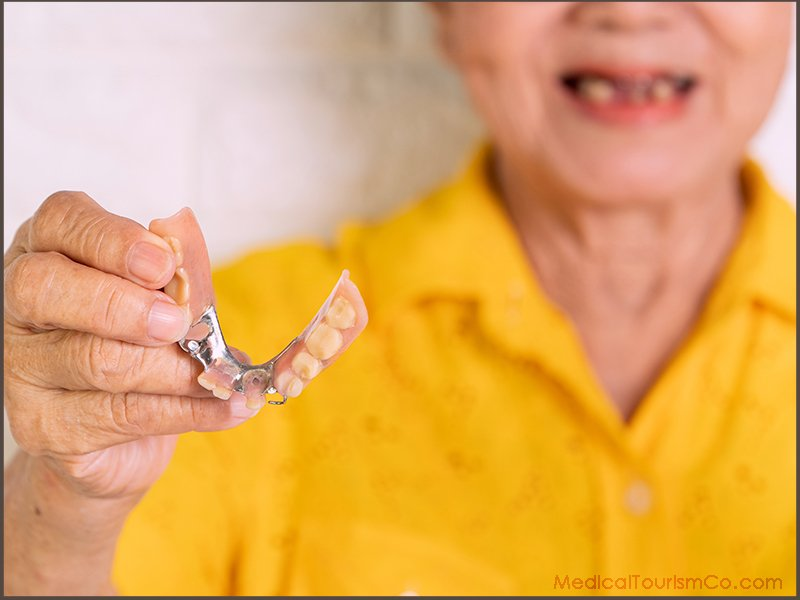 Removable Partial Dentures in Barranquilla