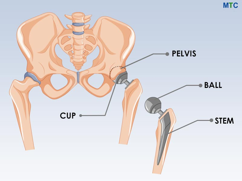 Hip Joint – Ball and Socket