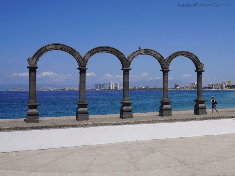 Malecon Arches- Dental Implant in Puerto Vallarta