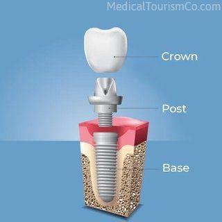Dental Implant | Dental Implants in Cartagena