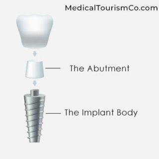 Titanium Implant | Dental Implants in Cartagena