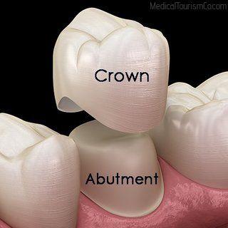 Porcelain Crown | Dental Implants in Cartagena