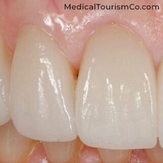 Zirconia Crown | Dental Implants in Cartagena