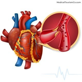 Cardiovascular Image | Stem Cell Therapy in Mexico
