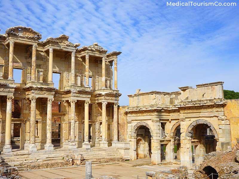 Ephesus Archaeological Museum | Dental Tourism in Turkey