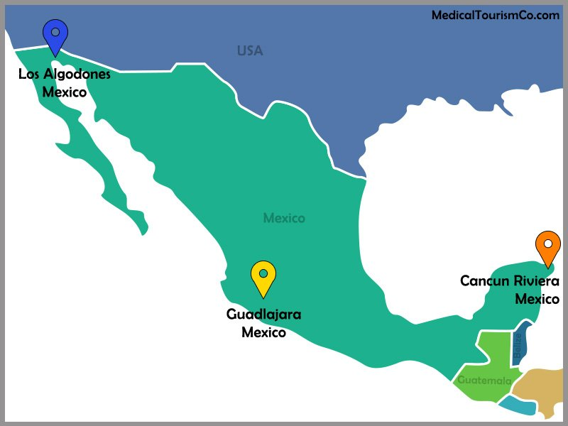 GIOSTAR Facilities | Stem Cell therapy in Mexico