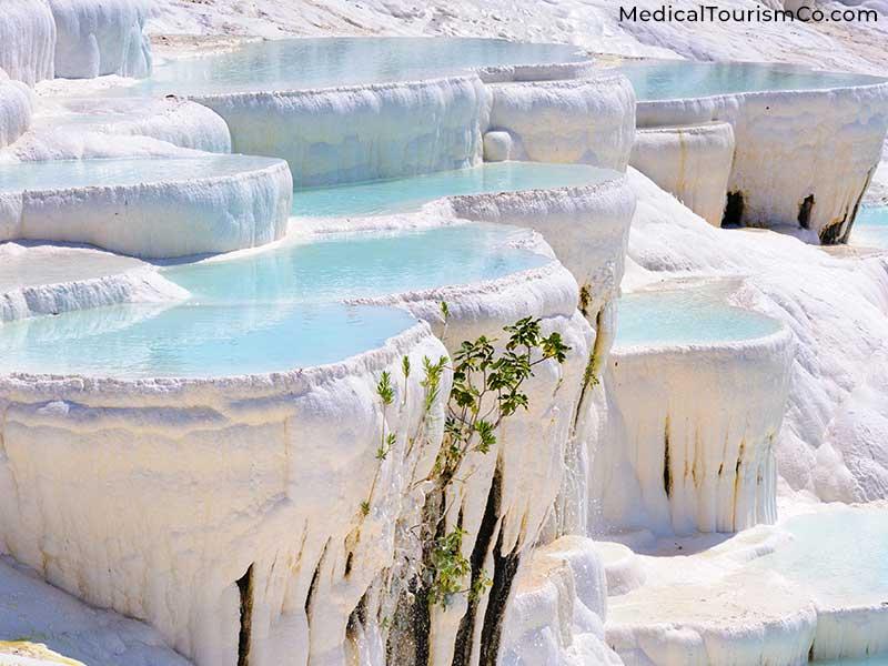 Hierapolis Pamukkale | Dental tourism in Turkey