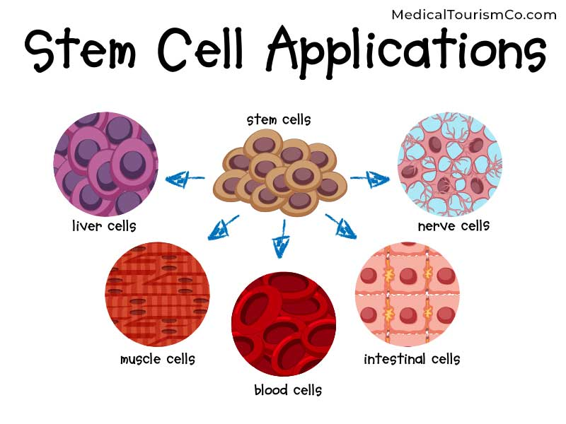 Stem Cells for Diabetes in India