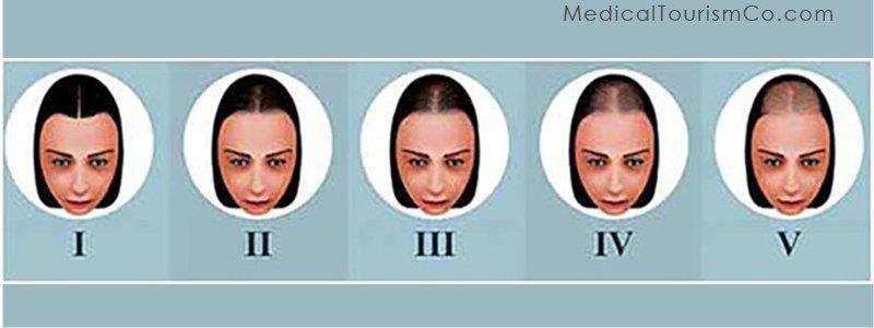 Stem Cell for Hair Loss: Female Pattern Hair Loss