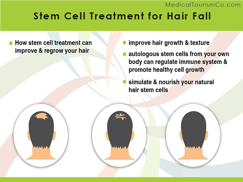 Stem Cell Treatment for Hair Loss in India