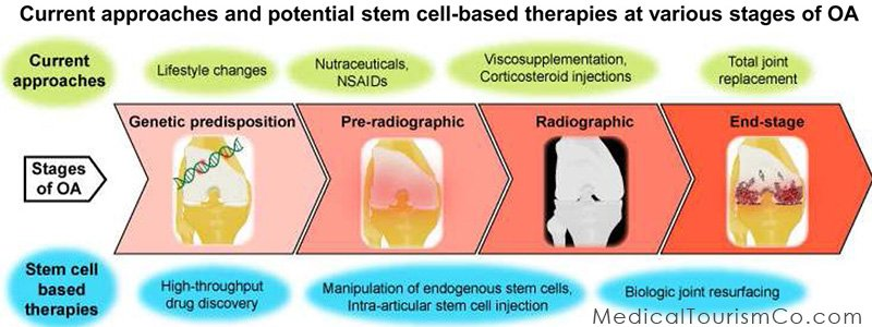 Stem Cells for Osteoarthritis in India