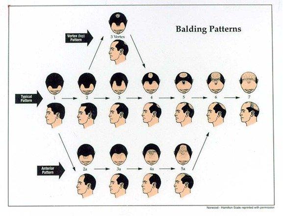 Stem Cell for Hair Loss: Male Pattern Hair Loss