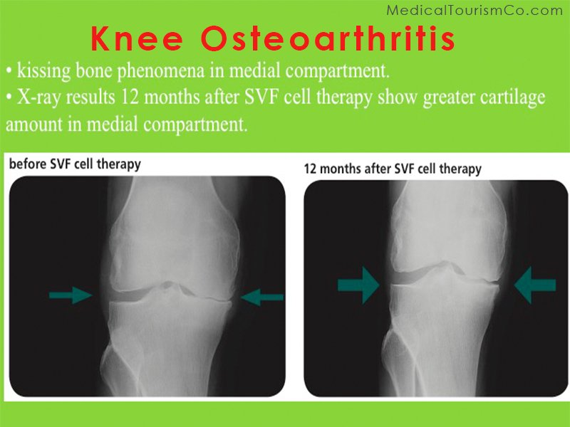 Stem Cell Therapy for Osteoarthritis Knee in India