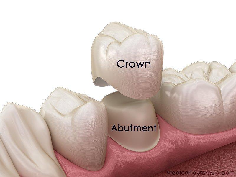 Dental Crowns in Los Algodones