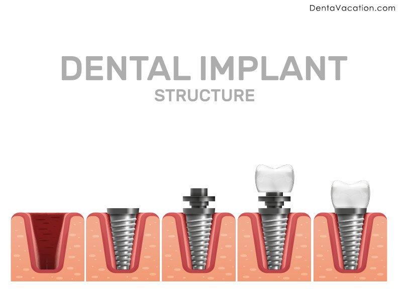 Dental Implants in Cabo