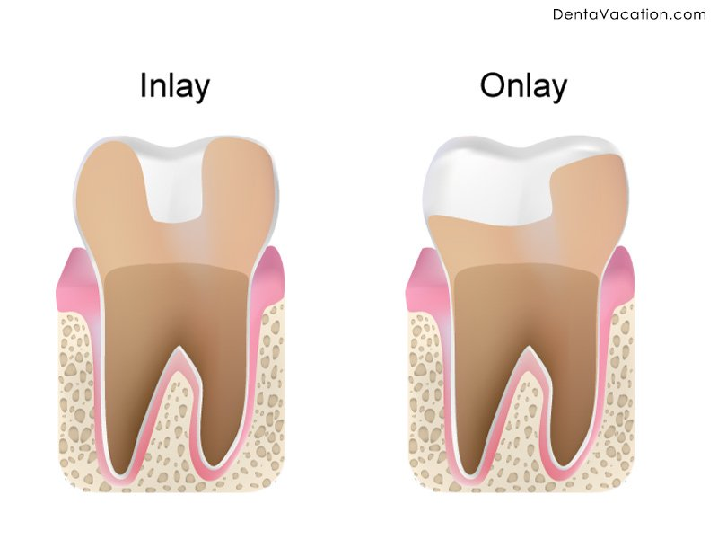 Inlay and Onlays Cosmetic Dental Work