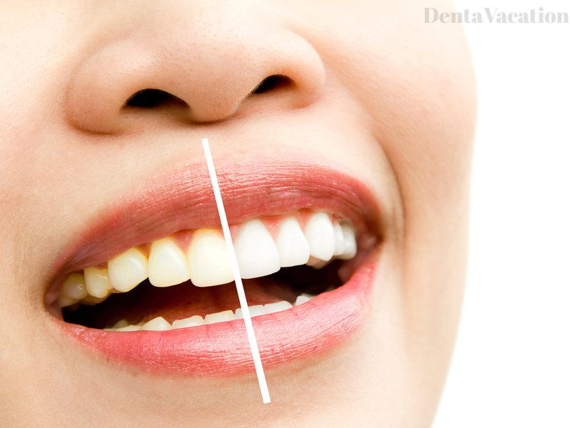Tooth Whitening at Dentist in Cabo